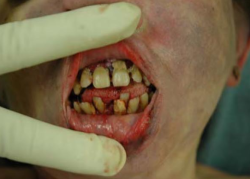 "A typical case of poor oral hygiene associated with methamphetamine use (""meth mouth"")."