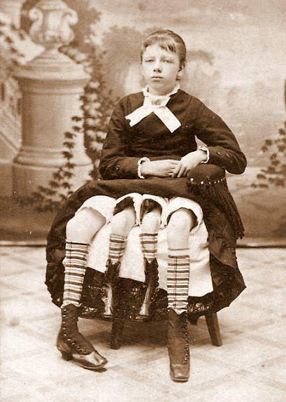 "nyxfoxx:  Josephene Myrtle Corbin (Born May 12, 1868 in Lincoln County, Tennessee – Died May 6, 1928 in Cleburne, Texas) was a sideshow performer who became one of the most infamous cases of being a dipygus. This meant that she had two separate pelvises, a result of her body being halfway split down the middle as she was developing. She had two smaller inner legs that were paired with the ""normal"" sized outer legs; she was able to move the smaller ones, although she had said that they were too weak for walking. Entering the sideshow circuit for a few years, at the age of 19, she eventually married a doctor and gave birth to five children - with two fully-functioning reproductive systems, it was said that some of her children came from one, and some from the other."