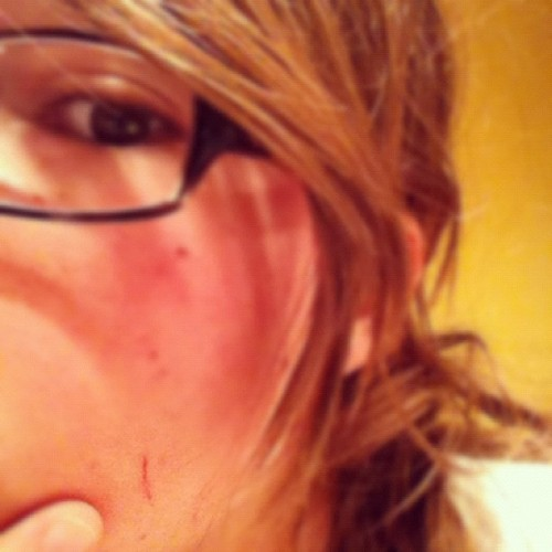 Battle scar from my encounter with the pantry door. It won. (Taken with Instagram)