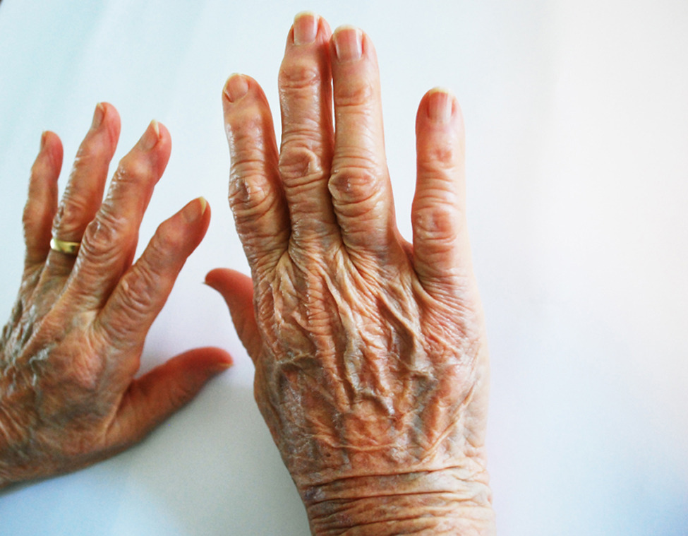 Photo of the Day: Photograph of my great-grandmother's hands. Photo by: Hannah Mishin (Brooklyn, New York); Moorseville, North Carolina.