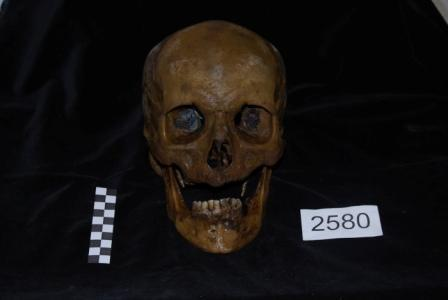 Image: A post-medieval skull with a coin in each eye orbit, excavated from Bethnal Green, London. Copyright AOC Archaeology. Via Bones Don't Lie: Coin in the Mouth or Shoe in the Coffin.