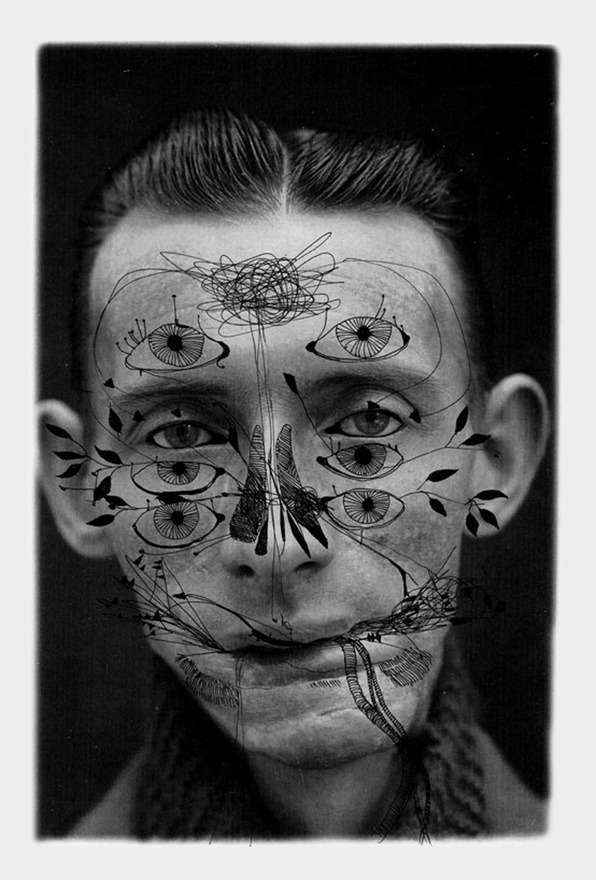 "Ashkan Honarvar - Faces, 2009 - pen on photograph ""Beauty comes in all shapes and sizes. It occurs in places you least expect, revealing its art in the human body, but also cruelly absent in the presence of deformation and scars. Honarvar depicts an undeniable, unavoidable beauty by accepting the darker sides of human nature."""