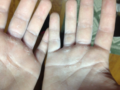My hands are finally toughening up! Power cleans felt great. A little weird with the walking boot but definitely possible. 3 more weeks until I'm able to wear a normal shoe. Very exciting stuff people.