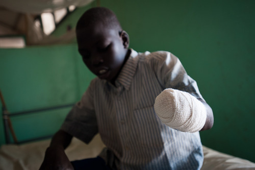 "simply-war:  Jacomo Tia Jibril (4) lost his hand and half of his forearm as a result of the bombing of his village of Kurchi by Sudanese Armed Forces fifteen days previously. He was washing clothes at the only borehole in the village when the bombing occurred. After fleeing from the sound of the aircraft, Jacomo says ""immediately after, I found my hand hanging off"", which later had to be amputated in the facility.  South Kordofan, Sudan- June 2011 © Phil Moore   What's it like to lose a limb like that? To go about your day and be permanently maimed?"