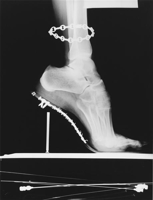 X-ray with chain, Paris, 1994.  Helmut Newton