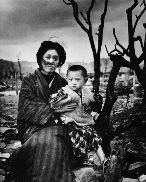 Mother and child, four months after the atomic bomb. Hiroshima, 1945. Alfred Eisenstaedt  via collective-history