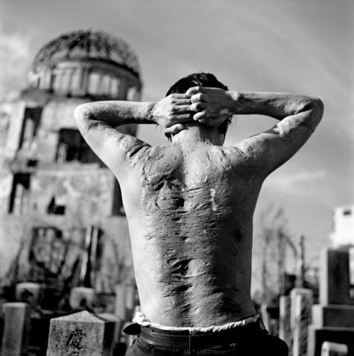 A victim and survivor of the Little Boy bomb standing in Hiroshima, 1951