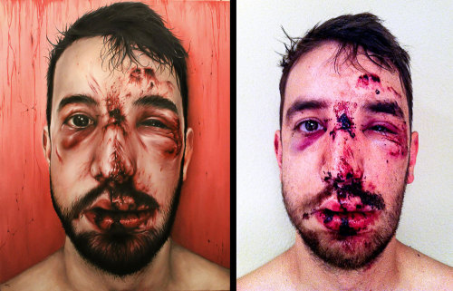Painting of a dude after a cycling accident. Looks so painful, but so awesome