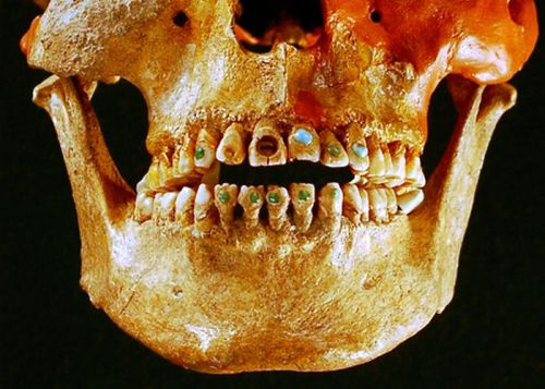 "theoddmentemporium:  Sophisticated dentistry allowed Native Americans to add bling to their teeth as far back as 2,500 years ago, a new study says. Ancient peoples of southern North America went to ""dentists""—among the earliest known—to beautify their chompers with notches, grooves, and semiprecious gems, according to a recent analysis of thousands of teeth examined from collections in Mexico's National Institute of Anthropology and History (such as the skull above, found in Chiapas, Mexico)."