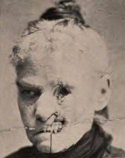 Facial sloughing as a result of syphilis, pre penicillin era. Sloughing refers to dead tissue quite literally sliding off.