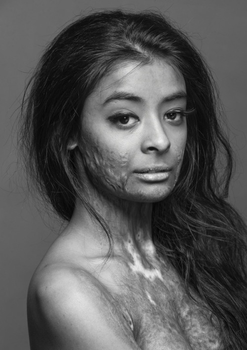 "bridgesburnedmemoriesmade:  This beautiful model, a burn survivor, did this photo shoot to, in her own words, ""prove that scars do not change a person, they make that person who they become."" What a gorgeous woman."