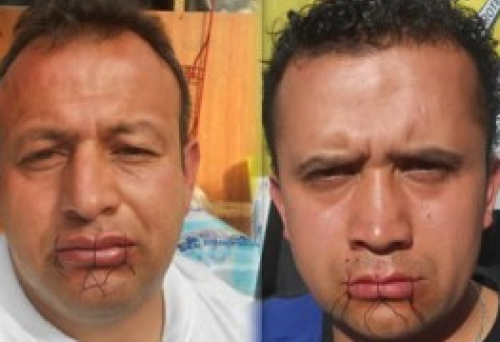 Former GM workers sew their mouths shut and start hunger strike Seven members of the Association of Injured Workers and Ex-Workers of General Motors Colmotores (ASOTRECOL) have sewn their mouths shut and started an indefinite hunger strike until General Motors meet their demands. Between 2008 and 2011, General Motors in Colombia fired many workers who sustained injuries during the course of their work. Work related injuries were widespread throughout the factory. Workers developed repetitive strain injuries, affecting hands, wrists, elbows, and shoulders – as well as spinal injuries due to heavy lifting, and hands being ripped off in machinery.  To end the hunger strike - ASOTRECOL demands that General Motors agree to: Recognise their injuries as occupational. Assume the costs of the corresponding medical treatment. Pay pensions or disability to those who are so severely injured that they can no longer work or can only work part-time. Compensate workers for the economic damage that they have suffered, including lost wages and lost homes. The hunger strike is now in its second week, and General Motors continue to ignore the worker's demands. Read more