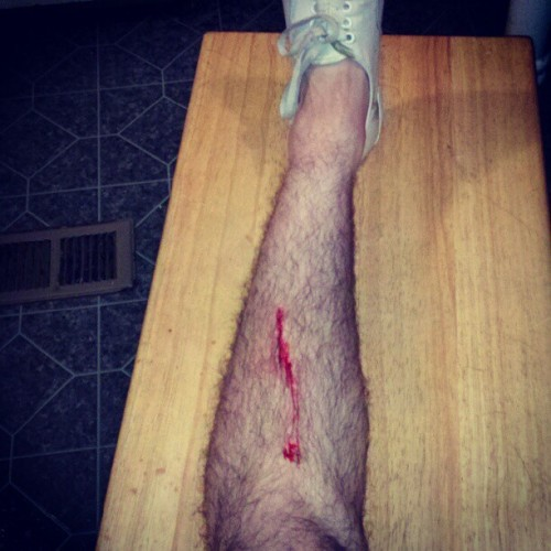 PARKOUR! #parkour #injury #grotesque #brutal #gnarly #sick #vegan #queer #homo #gay (Taken with Instagram)