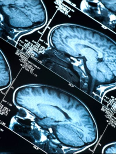 fyeahuniverse:  Determining Age Through Brain Scans  When researchers used MRI to scan the brains of 885 people between the age of 3 and 20; they found something surprising. Findings: they found a direct correlation between a 'developmental clock' in the brain, and the age of the subject. Regardless of what differences the individuals posses, this biological signature is tightly controlled in it's development. Through the gathered data they were able to predict the age of patients with more than 92% accuracy. This is much more accurate than any other biological measure produced thus far. This tightly controlled signature may allow for detection of abnormality and further study into the causes of such things as autism and ADHD. (x)
