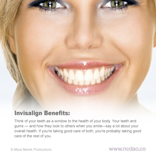 Join us on our #invisalign day! August 22nd!