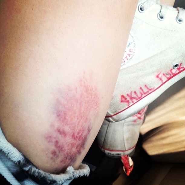 Hobbies hurt. #stayskatin 👊 (Taken with Instagram)