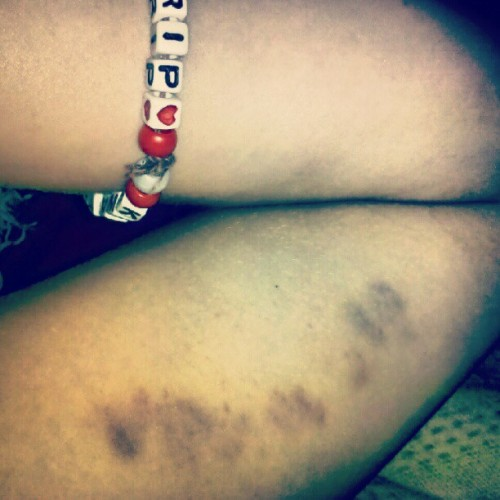 Maverick bit me! #cedarpoint #gnarly #bruises  (Taken with Instagram)