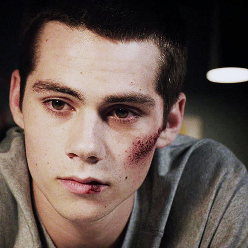 Teen Wolf, 2x12 - Master Plan  *Stiles #5