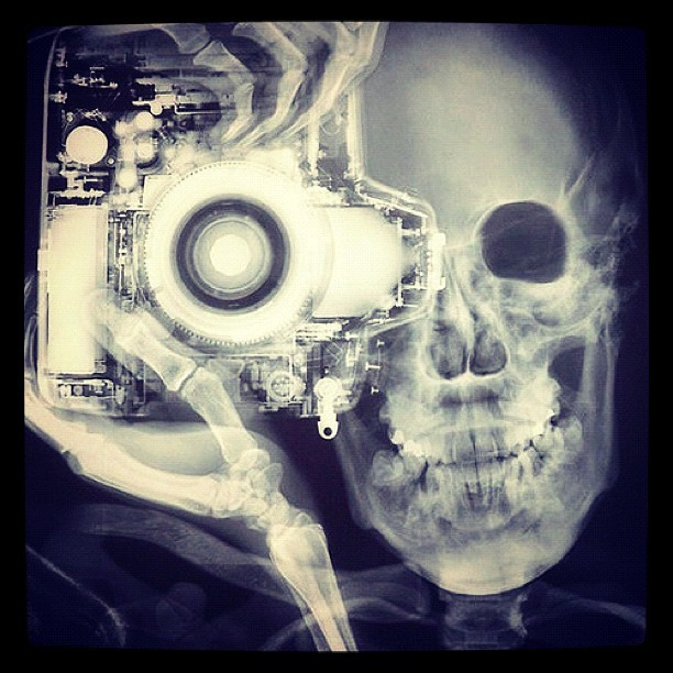 #bones #camera #picture #skeleton #x-ray #fun #original #justemoi #crazy #black #white (Tomada con Instagram)
