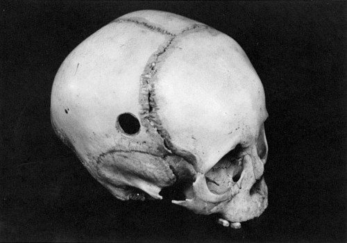 distortus: Trepanation is the oldest form of neurosurgery known to man and the procedure involved the removal of a piece of bone from the skull. Practiced since the Stone Age, trepanning was common well into the 19th century, and a few iconoclasts are attempting to revive it today. Archaeological evidence of trepanning has turned up all over the world, in the form of skulls with holes bored into them up to two inches in diameter. Amazingly, say researchers, judging from signs of bone grown, perhaps two-thirds of the patients survived. The operation wasn't usually what killed the patient, but the infection afterwards. These surgeries would cure headaches, treat brain disorders, release evil spirits or treat insanity.  The trepanation was done without anaesthesia, probably while the patient was fully awake. In the old days, it was necessary: a sharp knife to slice the skin of the skull and pull back the flaps a burin or tool like that used by engravers on wood and metal to cut through the bone files, brushes and other materials to dress up the job when done The procedure took a long time and pieces of bone cut from the skull were carried as good luck charms for doctors. Today, with the advent of the electric drill, anyone can do it in an afternoon.