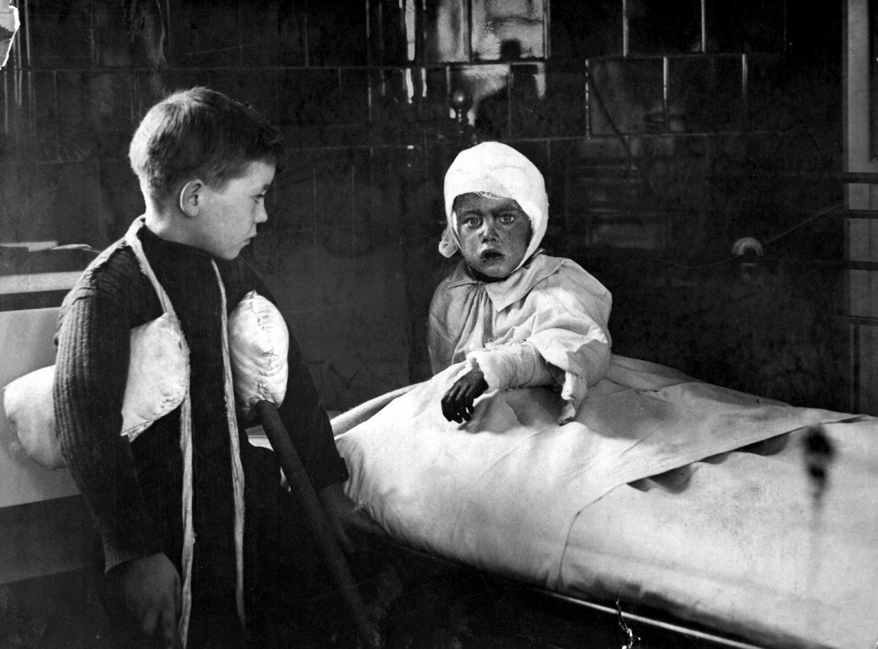itsjohnsen:  Schoolchildren wounded from German air raids lay in hospital. London, 1915. LIFE
