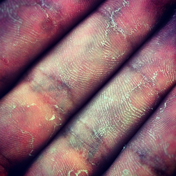 #Veins and #Callus, kinda gross looking! #rockclimbing #climbing #climbinghands (Taken with Instagram)