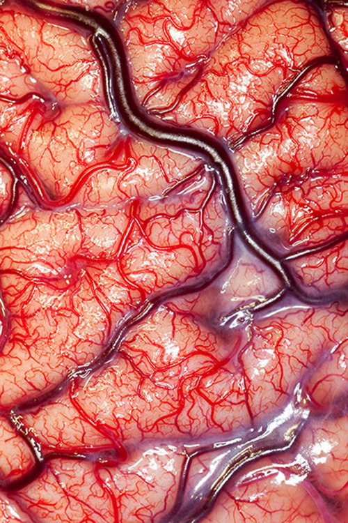 medicalschool:  The surface of a living Human Brain.