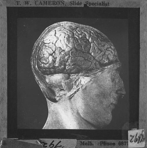 Lantern slide of photograph a human head, showing exposed brain. Made by T.W. Cameron, Melbourne, Victoria, circa 1930s-1940s.