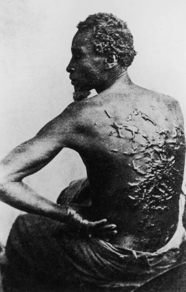 Rear view of former slave revealing scars on his back from savage whipping, in photo taken after he escaped to become Union soldier during Civil War.