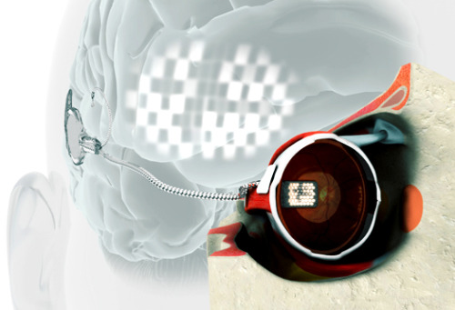 "laboratoryequipment:  Bionic Eye Lets Blind Woman See LightIn a major development, Bionic Vision Australia researchers have successfully performed the first implantation of an early prototype bionic eye with 24 electrodes.Dianne Ashworth has profound vision loss because of retinitis pigmentosa, an inherited condition. She has now received what she calls a ""pre-bionic eye"" implant that enables her to experience some vision. A passionate technology fan, Ashworth was motivated to make a contribution to the bionic eye research program. After years of hard work and planning, Ashworth's implant was switched on last month at the Bionics Institute, while researchers held their breaths in the next room, observing via video link.Read more: http://www.laboratoryequipment.com/news/2012/08/bionic-eye-lets-blind-woman-see-light"