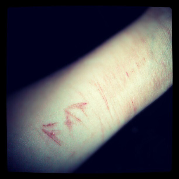 The gallery for --> Wrist Cut Scars