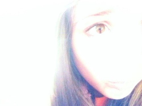 I have Cat eye syndrome (:  Defect in chromosome 22, i believe. (: