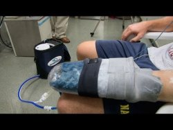 Cooling Glove Boosts Exercise Recovery Stanford research discovered a way to boost recovery after workouts with a cooling glove.  Rate improvement is much better and safer than steroids. Amazing.  Ordering a vacuum glove asap.