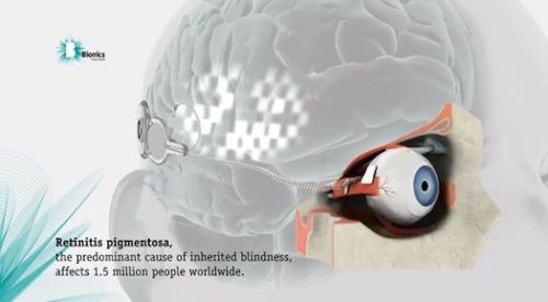 "joshbyard:  Australian Scientists Implant Prototype Bionic Eye: Blind Woman Sees Pulses of Light  In a world first, scientists have successfully implanted a prototype bionic eye that has helped a woman see shapes. Researchers from the government-funded consortium Bionic Vision Australia made the announcement in a statement yesterday; in it the implantee said she ""didn't know what to expect, but all of a sudden, I could see a little flash—it was amazing."" The team is hoping they can start to ""build"" shapes based on what she sees, eventually creating a bionic eye that works like its organic counterpart. The prototype device is set up in a lab. Electrodes in the implant stimulate nerve cells, and in the controlled environment scientists can get feedback from the user on the ""flashes of light."" That could help them adjust until the ""flashes of light"" reflect the actual environment enough to be helpful. It's not full vision, but it's an early step toward it. The next stage, the scientists say, is incorporating an external camera into a device, and creating versions with more electrodes. With 98, a person could be able to see large objects; with 1,024, they could recognize faces and large print.  (via In World First, Scientists Surgically Implant a Working Bionic Eye In a Blind Patient 