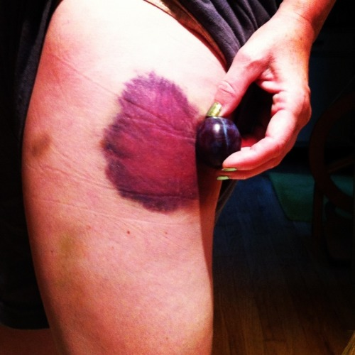 rollerderbynerd:  derbybruises:  Delicious plum colored bruise on Buttermilf Paincakes of the Jerzey Derby Brigade. Wiped out during scrimmage!  DAYUM!  PROUD OF ONE OF OUR OWN! hee hee hee