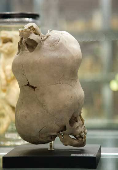 medicalschool:  The skull of a young boy with a second imperfect skull attached to its anterior fontanelle.  Hunterian Museum in London, England. (late 1780s)