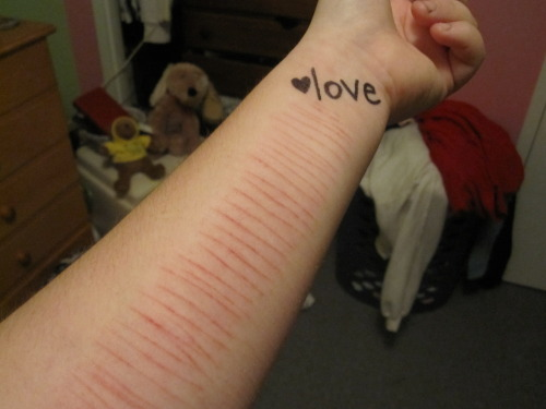 ifuckest:  omfg and i though i was a lot cuts in my wrists..   it's so neat and orderly….it almost looks fake but it's not