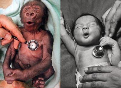 A gorilla, and a human baby reacting to the coldness of the stethoscope exactly the same way.