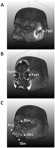 "Researchers have identified five of the genes that shape a person's face, work that could help scientists better understand facial abnormalities like cleft palate and someday might even help forensic investigators determine what a criminal suspect looks like from crime-scene DNA. Researchers previously knew that genetics played a large role in determining face shape, since identical twins share DNA. However, little was known about exactly which genes are involved. Three genes were thought to have roles in the arrangement of facial features, and the new research confirmed their involvement. It also identified two other genes. ""We are marking the beginning of understanding the genetic basis of the human face,"" said lead researcher Manfred Kayser, head of the forensic molecular biology department at Erasmus MC-University Medical Center Rotterdam, Netherlands. The study is part of the work of the International Visible Trait Genetics (VisiGen) Consortium, a group of six researchers who want to understand the genetics behind visible human characteristics."