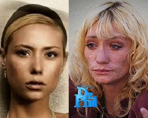 THIS IS YOUR FACE ON DRUGS: THE DOWNFALL OF A 'TOP MODEL'by Santina Muha http://bit.ly/OwuAP4