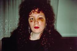 gussykirsty:   Nan Goldin Nan one month after being battered [1984]