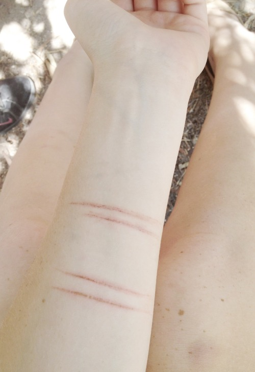 lasbien:  scars are so beautiful   it's people like you who fuck up this earth scars are not beautiful they are ugly but the people behind them are beautiful saying they are beautiful will make people want to cut themselves