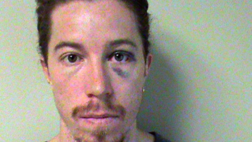 Shaun White Arrested For Embarrassing Himself At A Nashville Hotel: Apparently, White pulled the fire alarm, broke a hotel phone and even tried to attack another guest, but fell on his head before he could throw the first punch.  White reportedly attempted to flee the hotel in a cab but a citizen prevented the cab from leaving, telling the driver he was calling police. When White overheard their conversation, he allegedly kicked the citizen and fled on foot. The citizen reported that he chased White until White turned and ran into him apparently causing White to fall backwards and strike his head against a fence.  via