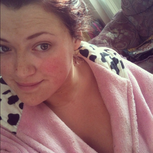 Me so poorly looking, and no makeup boo.  #girl #poorly #instadaily #face #tanned #dressinggown #personal #close #cow #natural #red #ill #urghhh (Taken with Instagram)