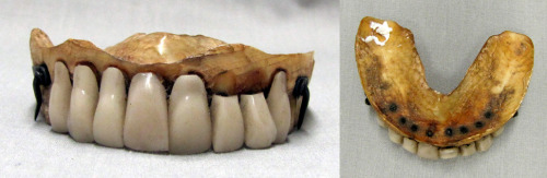 zygoma:  Waterloo Teeth Have you ever thought about where dentures come from? Archaeologists have found evidence of denture use dating back to 700 BCE and there have been many manifestations since, but their purpose has never really changed. Dentures were, and still are, used to replace teeth for both functional and aesthetic purposes. Early dentures were carved out of bone or ivory but since these materials are not covered with enamel, they react with the saliva in the mouth and decay, causing an unpleasant taste and odour. Porcelain dentures were introduced during the mid to late 1700s and didn't rot, but they were unconvincing as natural teeth because of their stark white colour. The next twist in the denture adventure is a little gruesome. When manufacturing dentures, it was found that nothing could mimic the look of human teeth quite like…human teeth! The best dentures available in Europe before the late 19th century had a carved base and molars of ivory with real human incisors and cuspids. Now where, you may ask did all those teeth come from? Most commonly, grave robbers procured teeth illegally.  Since they were often taken from those who had passed away from old age or disease, there was a greater chance that the teeth were already in some stage of decay and not very desirable. Fast forward to 1815 when we find Napoleon taking on the combined forces of the Seventh Coalition at the battle of Waterloo—which is of course where the term Waterloo Teeth got its start. Once the battle was over, there were a large number of deceased: otherwise healthy young men who had succumbed to their injuries and, in the eyes of scavengers, no longer required their teeth. The teeth were pilfered and shipped away to dentists who placed them into the carved ivory bases and attached large price tags, making these dentures available only to the very wealthy. Waterloo Teeth were most popular in the early nineteenth century, but teeth from soldiers of the American Civil War appeared in catalogues in the late 1860s. The demand for human teeth decreased when new technologies and techniques were invented to make artificial teeth appear more realistic. With dental technology what it is today, dentures can look exactly like real teeth, making Waterloo Teeth a thing of the past.  (source)