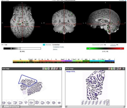 """Scientists create first 'atlas of the brain' - and release it online so researchers across the world can unlock our mind's secrets""  The Allen Institute for Brain Science, based in Seattle, created the atlas so that other researchers can compare and contrast their own findings from brain scans and genetic surveys, with the hope that having a 'baseline' to work from will unveil more secrets about psychiatric conditions. (…) This allows us for the first time to overlay the human genome on to the human brain. 'It gives us essentially the Rosetta stone for understanding the link between the genome and the brain, and gives us a path forward to decoding how genetic disorders impact and produce brain disease.'"