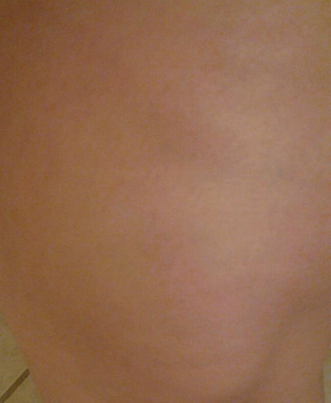 Bruise i got from my fall yesterday, it hurts