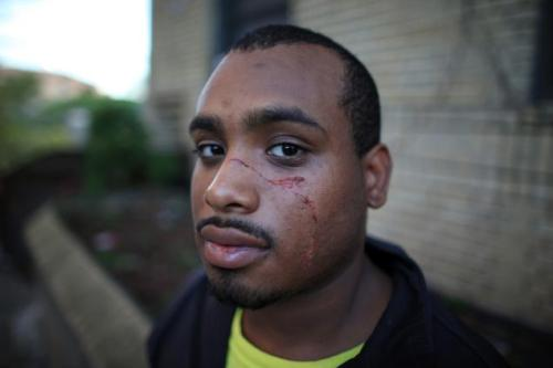 "medioxumatepoet:  ashesforjustice:  24 YEAR OLD JAMAR MCLEOD SLASHED IN THE FACE WHILE DEFENDING HIS GIRLFRIEND, A TRANSGENDER WOMAN, FROM TRANSPHOBIC ATTACKER (TW: language, transphobic language, homophobic language, violence against lgbtq persons) This attack occurred in broad daylight, in Greenwich Village in New York City.  No, New York is not some magical utopia where everyone can just ""be themselves."" Do yourselves a favor, and avoid the comment section to avoid triggering language.  God damn it   :( This is not what the world should look like. This is not what loving someone should look like. This is not what humanity should look like."