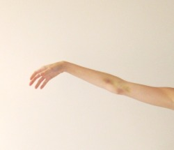 fantasiesandgraves:  look at my poor little bruised arm, the result of four test tubes of blood and three weeks later ♡