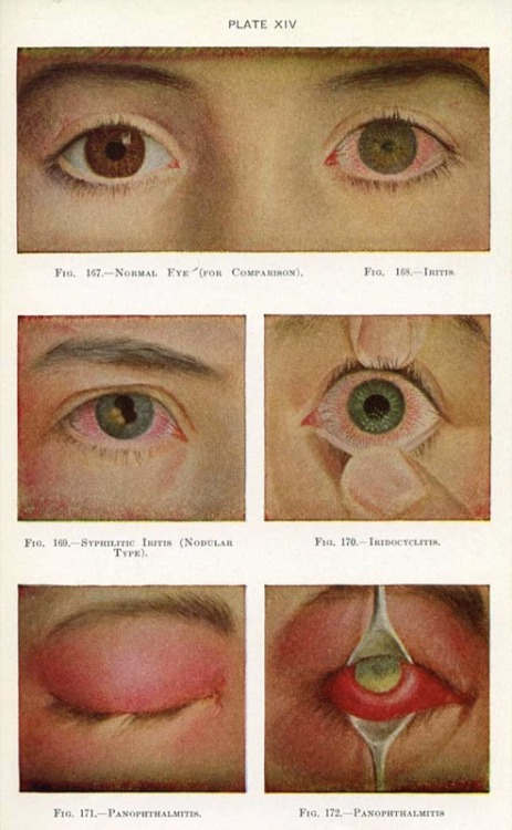 Manual of the Diseases of the Eye for Students and General Practitioners, Charles H. May M.D., (1939 edition, orig, 1900)